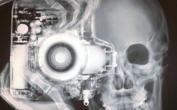 Photography X-ray Camera HD Wallpaper   Background Image